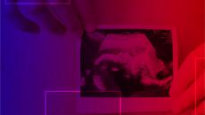 DVD + ONLINE - Curso de Ultrassonografia em Medicina Fetal 1° e 2° Trimestres e Doppler – Prof. Dr Sang C. Cha